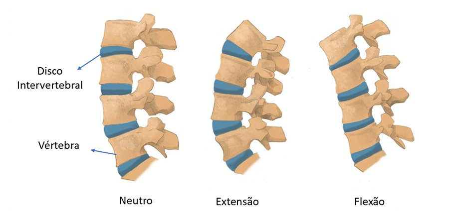 Artroplastia lombar: a prótese da coluna lombar | Dr. Ricardo Teixeira