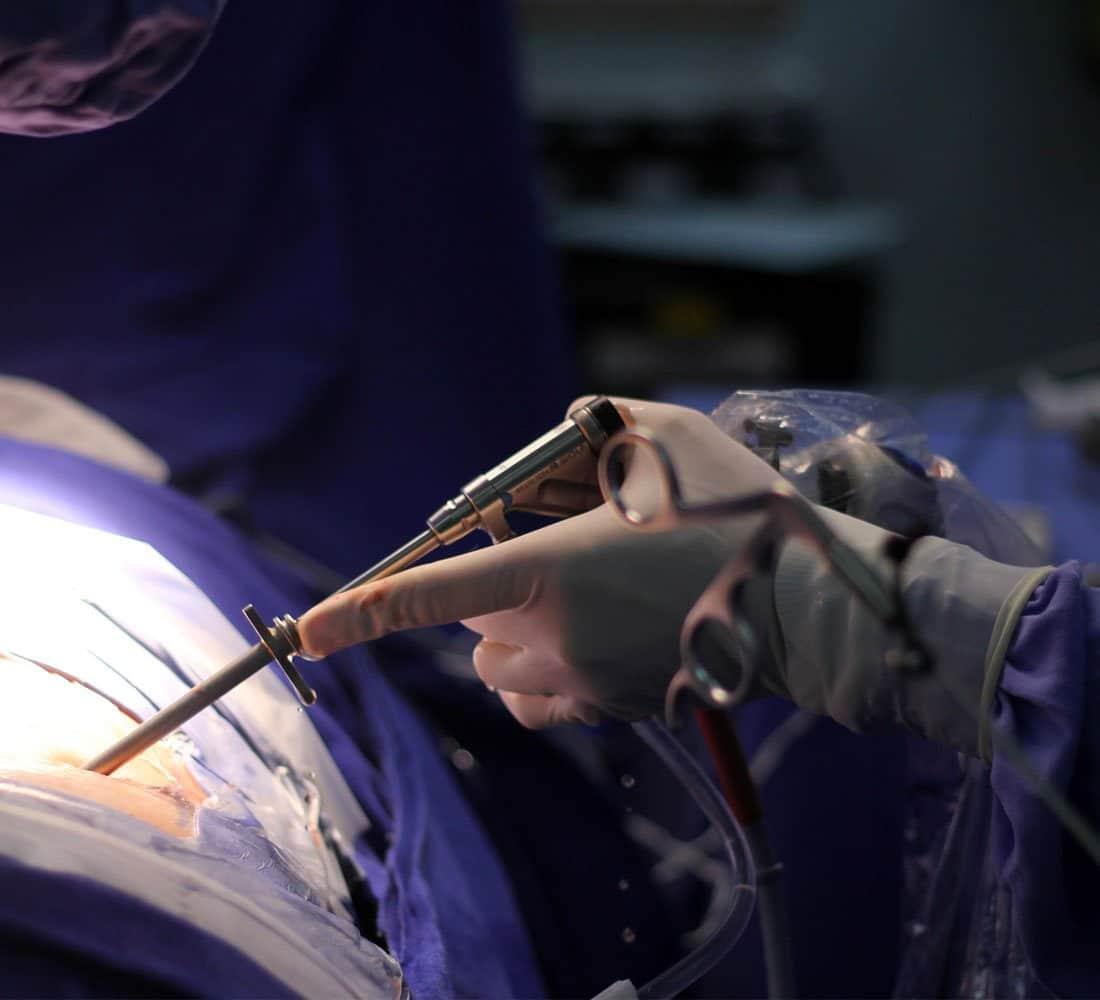 Cirurgia Endoscópica Da Coluna Vertebral | Dr. Ricardo Teixeira