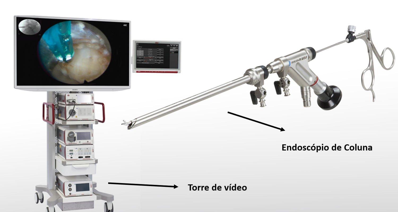 Figura 1 - Equipamento para endoscopia de coluna
