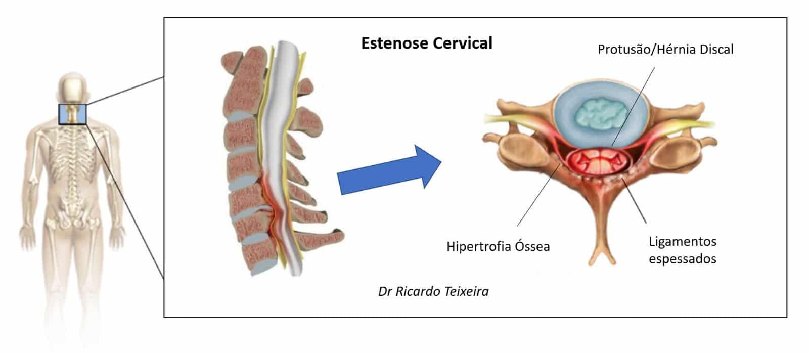 Figura 1 – Estenose Cervical