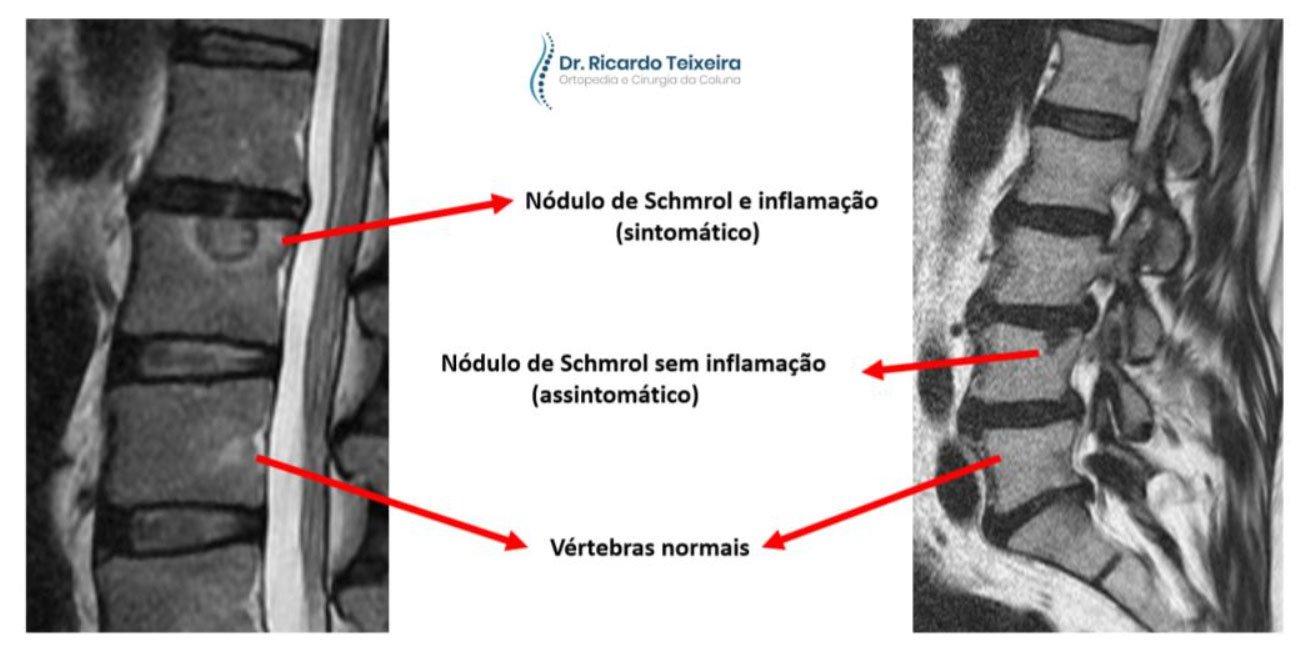 Sintomas - Nódulos de Schmrol | Dr. Ricardo Teixeira