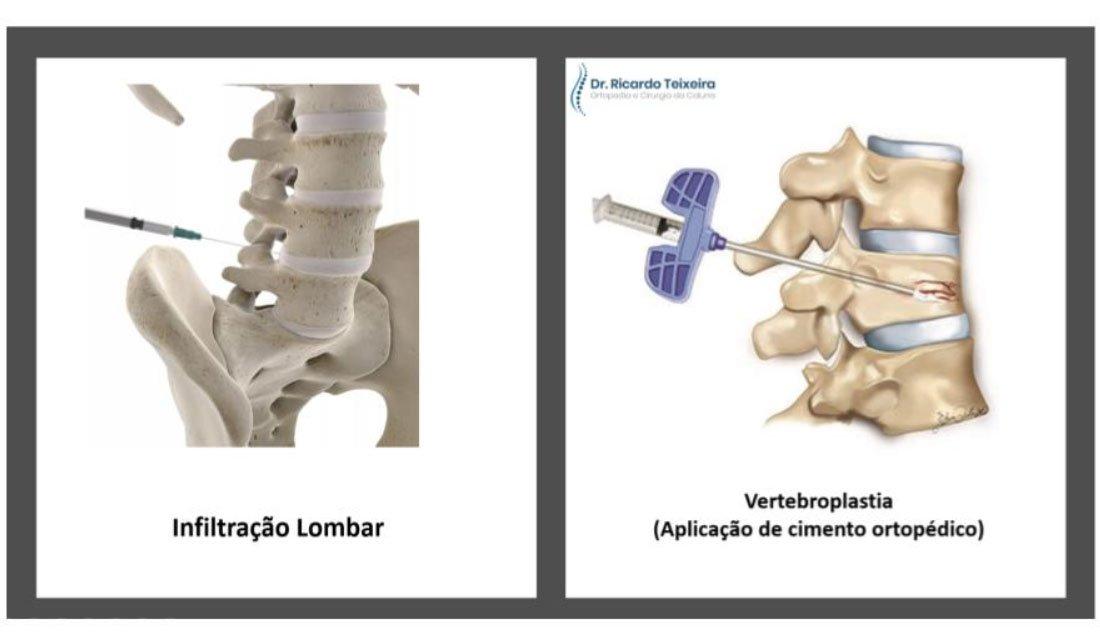 Tratamento - Nódulos de Schmrol | Dr. Ricardo Teixeira