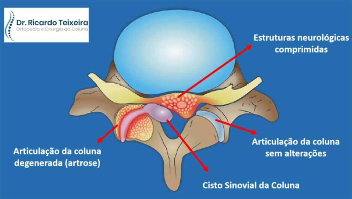 Cisto Sinovial da Coluna | Dr. Ricardo Teixeira