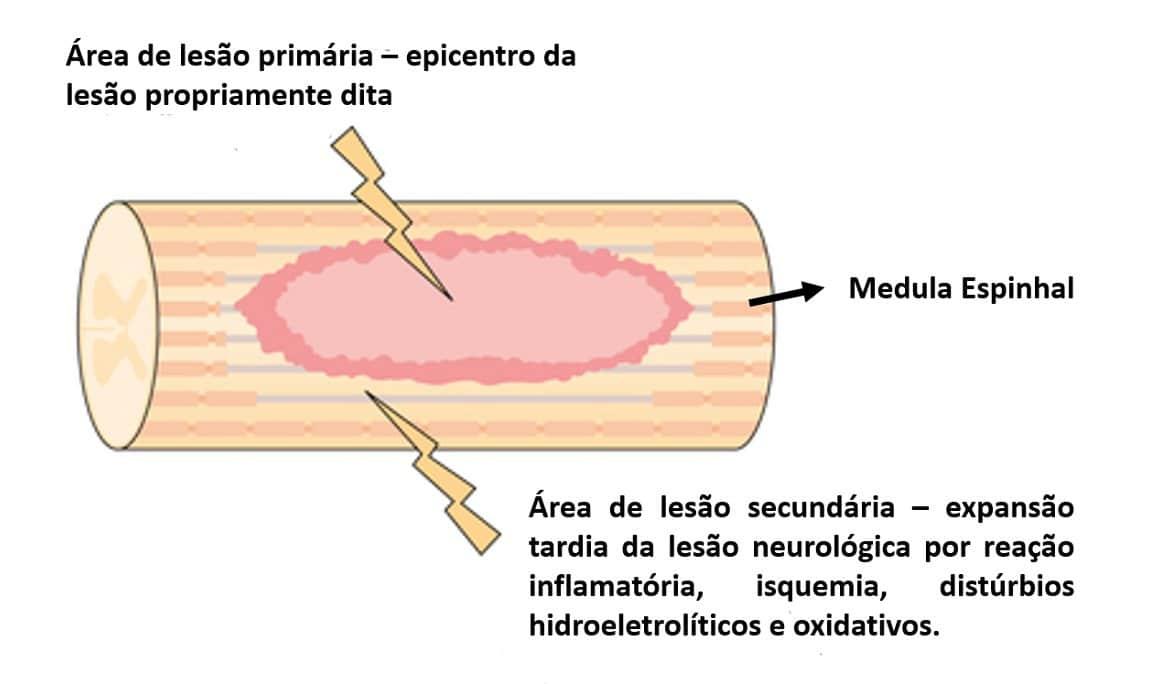 Trauma Raquimedular | Dr. Ricardo Teixeira