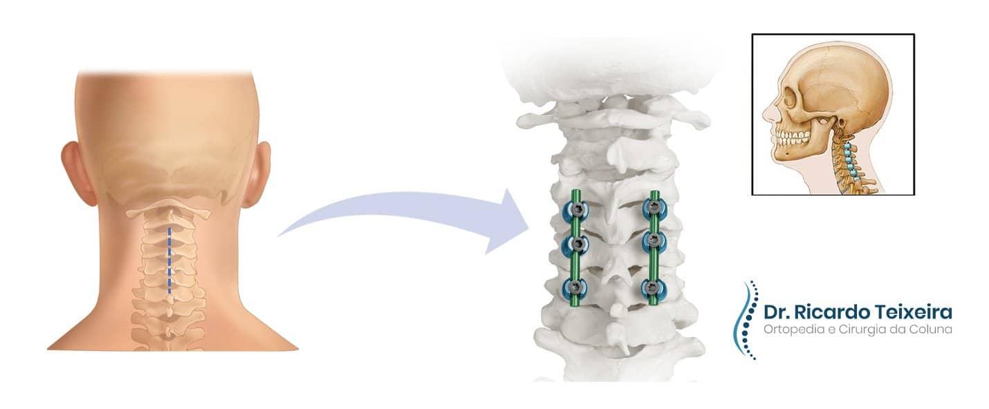 Artrodese Cervical Posterior   Dr. Ricardo Teixeira