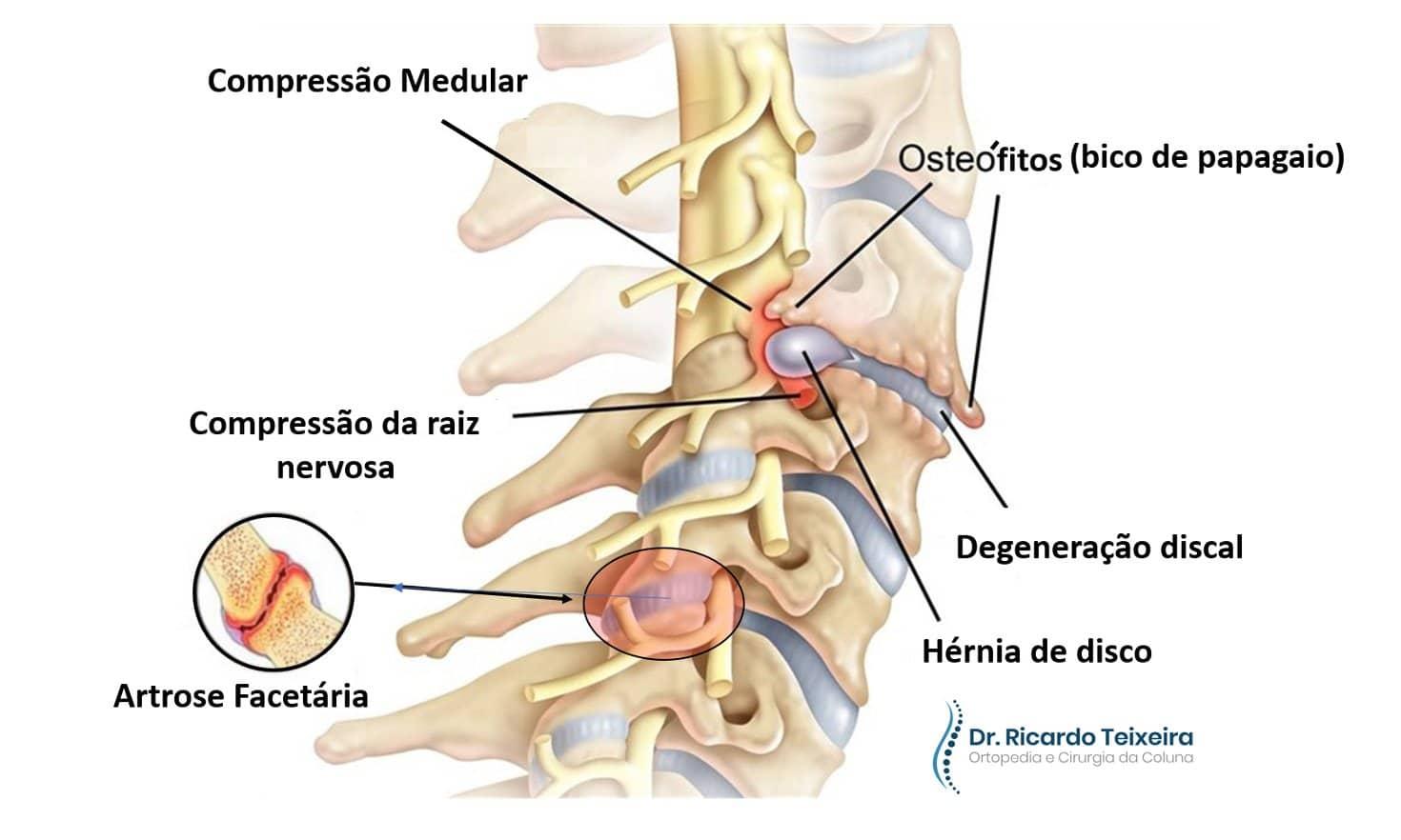 Espondilose Cervical   Dr. Ricardo Teixeira