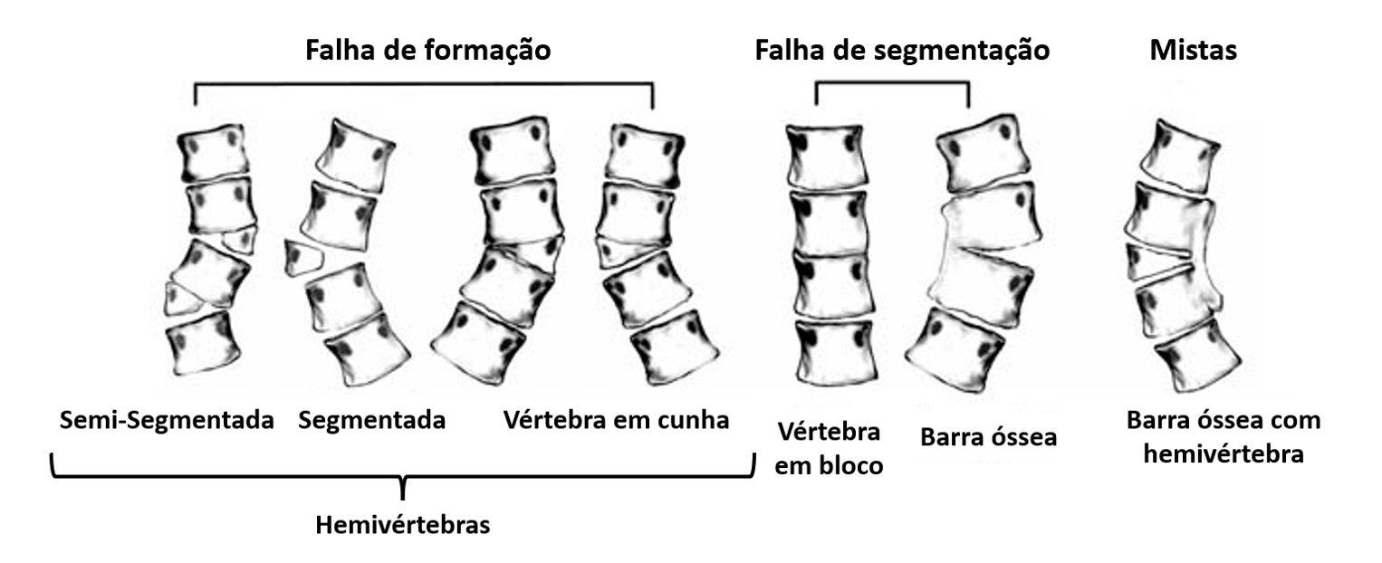Hemivértebra   Dr. Ricardo Teixeira